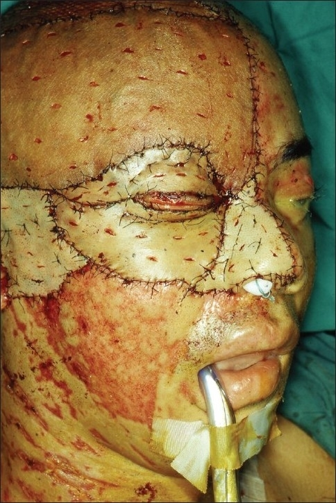 Skin placement following the principles of aesthetic units. For the nose and cheek, skin was harvested from the scalp. For the forehead and preauricular area, thigh skin was used. Note that fenestrations were made along the relaxed tension lines