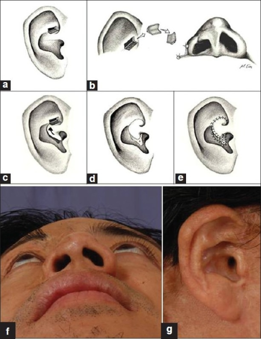 (a-e) Reconstruction of the right alar-facial groove. (a) Harvesting of composite antihelical chondrocutaneous graft; (b) Graft used to cover alar facial groove; (c) Conchal transposition flap used to cover donor site. Arrow shows direction of movement of flap; (d) After covering donor site with chondrocutaneous flap, a resultant secondary defect exists (marked with an asterix); (e) Secondary defect skin grafted. (f) the reconstructed alar-facial groove; and (g) The donor ear