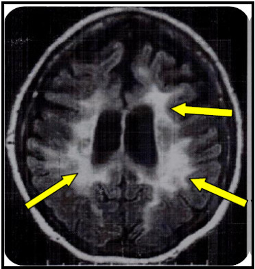 Brain MRI of the patient with adult form of MLD 'arrows' indicate the lesions of the white matter.