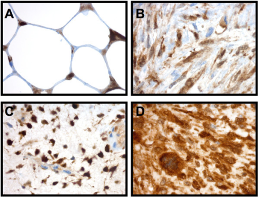 ALDH1 expression in liposarcoma patient samples. ALDH1 was expressed in 10 out of 10 primary liposarcoma tumors analysed by immunohistochemsitry. (A) Well differentiated-, (B) De-differentiated-, (C) Myx/roundcell- and (D) Pleomorphic-liposarcoma.