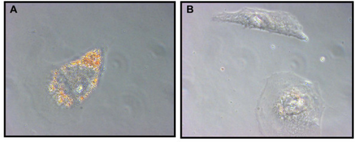 Aldefluourhigh CD133high SW872 xenograft-derived cells differentiate into adipocytes. (A) Accumulation of lipid droplets indicative of mature adipocytes was observed following culturing of Aldefluourhigh CD133high sorted SW872 cells in medium supplemented with adipocytic differentiation cocktail (visualized by oil red O staining). (B) Aldefluourhigh CD133high sorted SW872 cells did not differentiate as efficiently when maintained in standard RPMI medium.