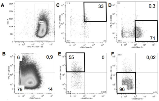 Flow cytometry and purity testing of sorted fractions. (A) Viable, single, human (TRA-1-85+) SW872 xenograft-derived cells (98, 8%) were sorted on the basis of (B) Aldefluor (X-axis) and CD133 (Y-axis) activity. In this representative experiment the subpopulations in the culture were as follows: 79% Aldefluorlow CD133low, 6% Aldefluorlow CD133high, 14% Aldefluorhigh CD133low and 0, 9% Aldefluorhigh CD133high. The 4 flow sorted subpopulations were subject to subsequent purity testing: (C) Aldefluorhigh CD133high: 33% pure, (D) Aldefluorhigh CD133low: 71% pure and containing 0, 3% potential CSCs (E) Aldefluorlow CD133high: 55% pure and (F) Aldefluorlow CD133low: 96% pure.