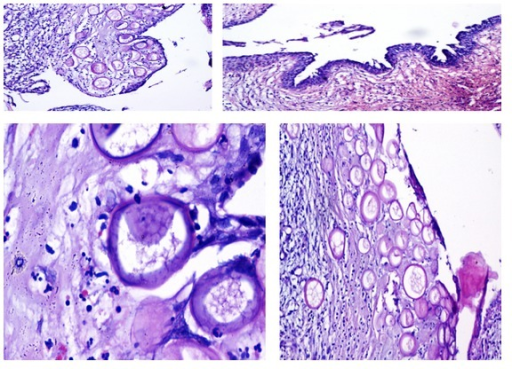 Hematoxylin-eosin-stained sections showing thin fibrocollagenous cystic wall lined by columnar to cuboidal to flattened cells and presence of numerous and nonvital sporangia of R. seeberi.