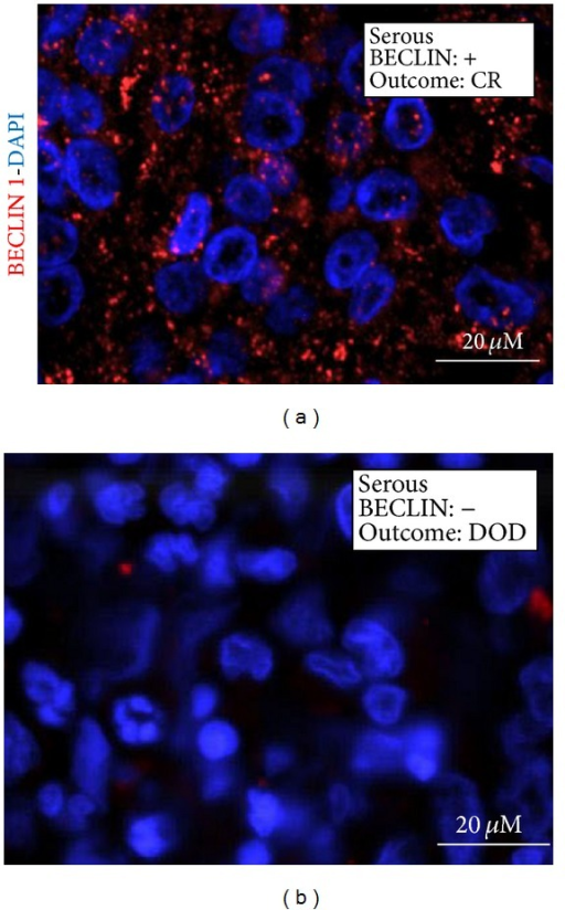 Immunofluorescence detection of BECLIN 1. Selection of representative cases. The histologic type and the clinical outcome (CR: complete remission; DOD: dead of disease) are indicated. The nuclei are evidenced by DAPI staining.