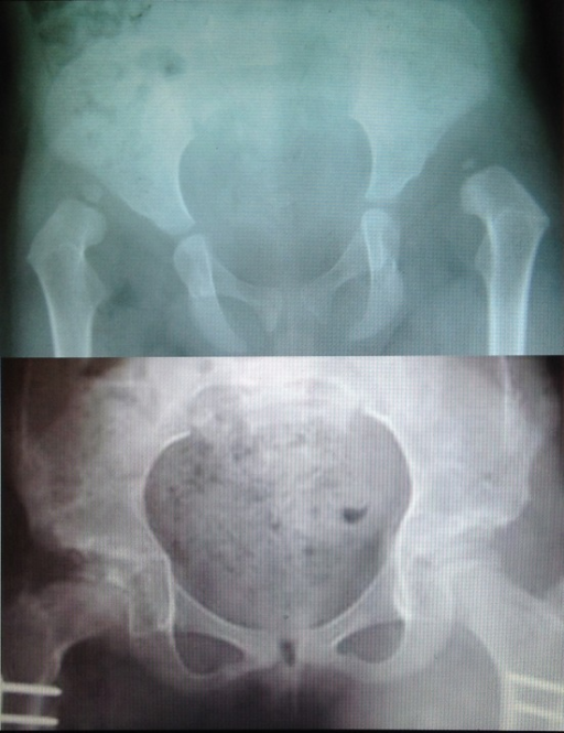 Above; a 2.5 year old girl with bilateral high hip dislocation. Below; eight years after bilateral Salter shortening, AVN and coxa vara developed on the right side.