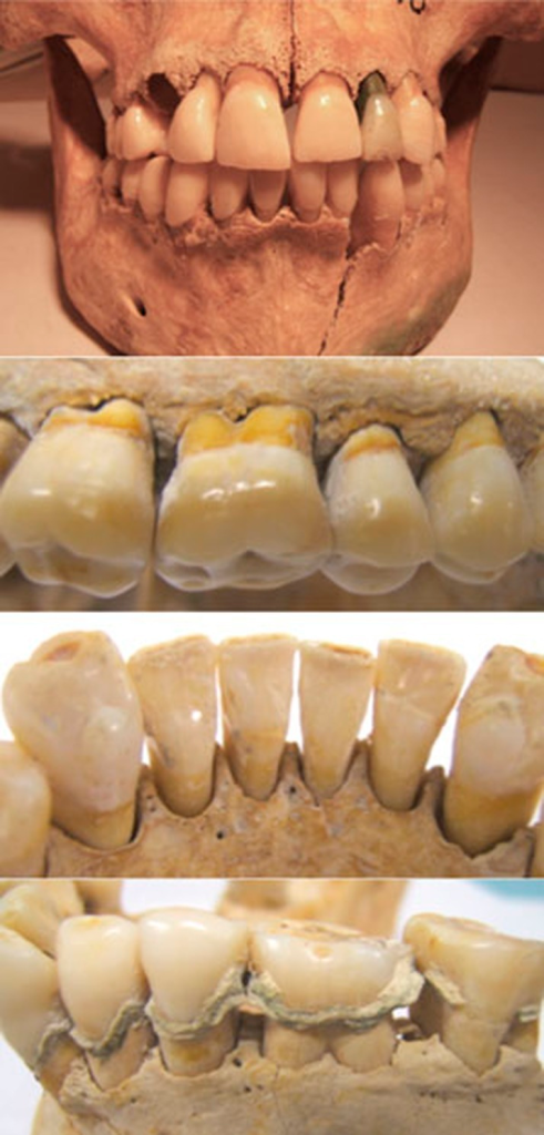 (a) 25-year-old female, buried around 350 AD.Periodontally healthy but some post-mortem damage evident. She had been buried with a copper coin in her mouth resulting in the tooth discolouration seen in upper left second incisor. (b), (c) Periodontally healthy samples with normal crestal alveolar bone contour and intact cortical plates. (d) Extensive calculus deposits. Note also single infra-bony defect mesial to lower second molar