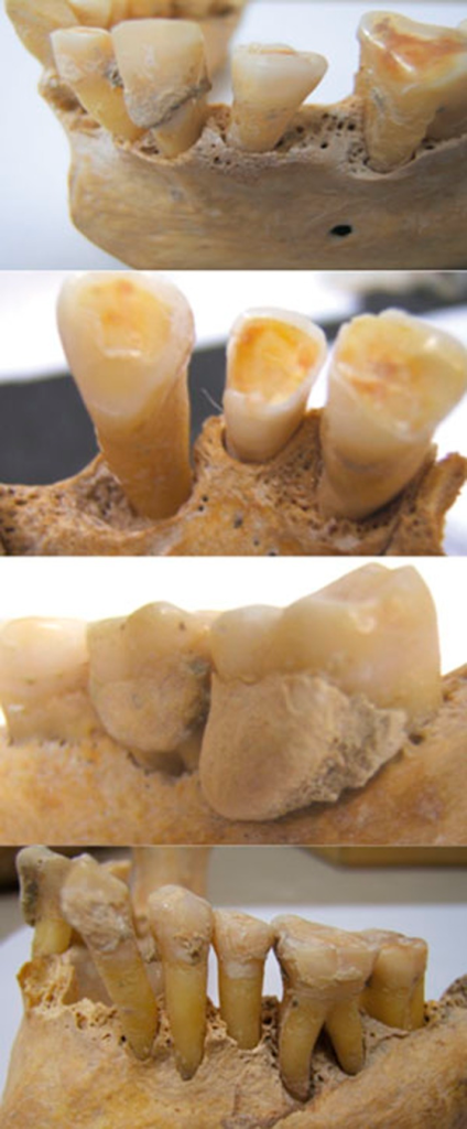 Examples of periodontitis cases