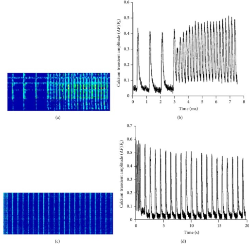 Line-scans of a Rhod-2 AM loaded isolated trabecula and changes in calcium amplitude during changes in pacing frequency from 1 Hz to 4 Hz and 4 Hz to 1 Hz. (a) Representative image of matrix line-scan of Rhod-2 AM loaded, isolated muscle, during frequency change from 1 Hz to 4 Hz and corresponding change (b) in calcium transient amplitude (ΔF/Fo). Representative image of line-scan of Rhod-2 AM loaded isolated muscle (c) during frequency change from 4 Hz to 1 Hz and corresponding calcium transient amplitude trace (d) (ΔF/Fo).