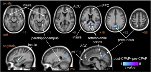 Brain regions in which fluctuations in BOLD signal intensity coupled to fluctuations in muscle sympathetic nerve activity (MSNA) were significantly different in subjects with obstructive sleep apnoea (OSA) prior to and following 6 months of continuous positive airway pressure (CPAP) treatment. Cool color scale represents regions in which changes in signal intensity during each burst of MSNA were significantly reduced following CPAP treatment. Significant clusters are overlaid onto a mean T1-weighted anatomical template image. Slice locations in Montreal Neurological Institute space are indicated at the lower right of each image. ACC: anterior cingulate cortex, mPFC: medial prefrontal cortex.