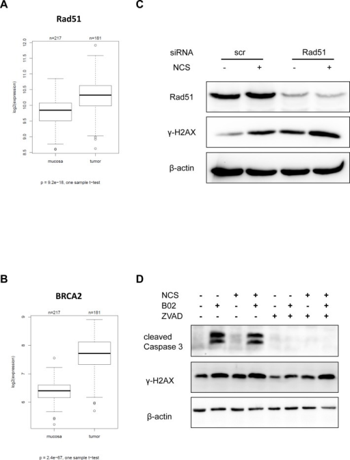 Inhibition or knockdown of Rad51 also leads to persistent γ-H2AXmRNA expression of HRR components in tumors and normal mucosa evaluated in biopsy material from human specimens using microarray hybridization (A) Rad51 and (B) BRCA2. (C) SW480 cells were depleted of Rad51 using siRNA for 16 h and then treated with NCS for 24 h. Whole cell extracts were immunoblotted followed by detection by the indicated antibodies. (D) SW480 cells were treated with B02 and/or ZVAD for 24 h followed by NCS for 24 h. Whole cell extracts were immunoblotted, followed by detection by the indicated antibodies. β-actin was used as a loading control.