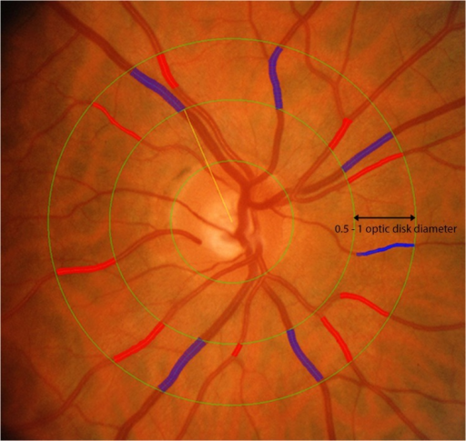 Retinal vascular calibre measurement.Retinal arteriolar and venular calibers were summarized as central retinal arteriolar (CRAE) and the central retinal venular (CRVE) equivalent respectively from digital retinal fundus images using the Interactive Vessel Analysis software (IVAN, University of Wisconsin, US). Arterioles are in red and venules are in blue.