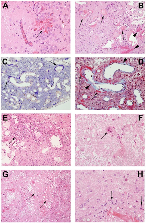Pathological features in post-irradiation mouse brain.A. Micro-hemorrhage and dilated vessels (arrow, 20X); B. Hemorrhage (arrowheads) and fibrinoid vascular necrosis (arrows) (H&E staining, 20X); C. PTAH staining shows fibrinoid vascular necrosis in dark blue (arrows, 20X); D. Trichrome staining demonstrates fibrinoid vascular necrosis (red, arrows) and collagen deposition (light blue, arrow heads)(60X); E. Macrophages surrounding damaged tissues (arrow, 20x); F. Cellular atypia (arrows, 60X); G. Edema (arrows, 20X); H. Neuronal necrosis (arrows, 60X).