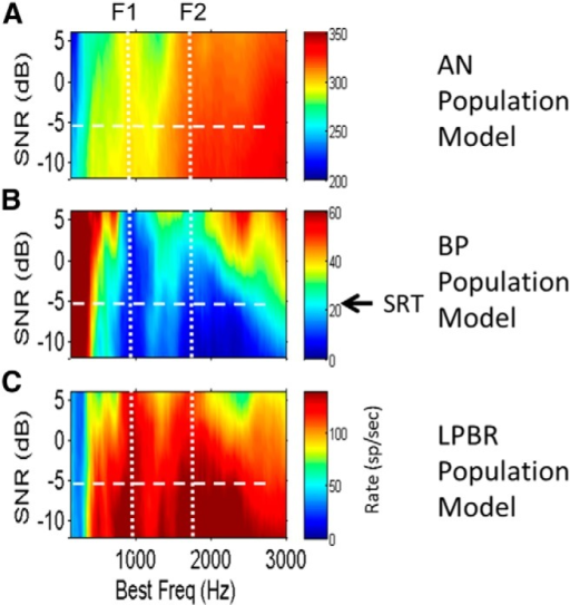 A–C, Population rate profiles for model AN (A), BP (B), and LPBR (C) cells in response to the vowel /æ/ (had) for a range of SNRs. Vowel levels were fixed at 65 dB SPL; the noise level increases toward the bottom of plots. A, Saturation of AN rates by the added noise obscures representations of formant frequencies, especially in the F2 region. B, Dips in the average discharge rate profile that indicate the first two formants in the BP population response deteriorate gradually as SNR decreases (toward the bottom of the plot). C, Peaks in the rate profile versus SNR for model LPBR cells also deteriorate as SNR decreases. Arrow and horizontal dashed lines indicate the approximate SRT for listeners with normal hearing (Festen and Plomp, 1990). Model parameters are the same as in Fig. 3B.