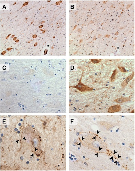 Galanin like immunoreactivity (GAL-ir) of putative cholinergic neurons. a-b Sections of ChAT (a) and galanin (b) immunostaining of the nucleus basalis magnocellular neurons from the same case; * denotes same anatomical landmark. c Example of minimal somal immunoreactity. d Example of intense perikaryal GAL-ir. e-f Galaninergic innervation of putative cholinergic neurons (arrow heads)
