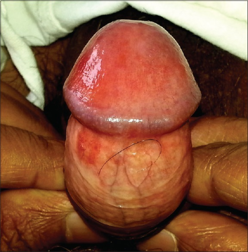 Red spot on glans penis