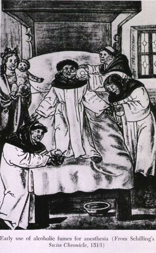 <p>Early use of alcoholic fumes for anesthesia (from Schilling's Swiss Chronicle).</p>