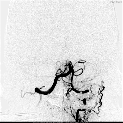 Left vertebral artery injection showing a mid basilar occlusion likely secondary to right vertebral occlusion with subsequent thrombo-embolism.