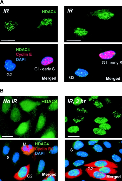 HDAC4 foci are induced by IR in interphase cells. (A) Asynchronous HeLa cells were irradiated with 2 Gy IR and 1 h later were fixed and stained for HDAC4, cyclin E, and DAPI. The top panels show HDAC4 staining, and the bottom panels show HDAC4 merged with cyclin E and DAPI. HDAC4 foci are apparent in cells in late G1/early S phase (G1–S) as well as in those not expressing cyclin E and presumably in G2 phase (G2). (B) Cells synchronized and mock irradiated or irradiated (2 Gy) in late S phase were fixed and stained 3 h later for HDAC4, cyclin B1, and DAPI. The top panels show HDAC4 staining, and the bottom panels show HDAC4 merged with cyclin B1 and DAPI. After mock IR (No IR), S-phase cells have not yet expressed cyclin B1 (S), whereas cyclin B1 is cytoplasmic in G2 cells (G2) and coincides with the condensed chromatin in mitotic cells (M) (Kao et al., 1997; Hagting et al., 1999). After IR (IR, 3 h), HDAC4 foci are seen in most cells, including S phase (S) and those that have progressed to and blocked in G2 phase (G2). (C) Synchronized cells were irradiated in late S phase as in B, but fixed 5 h after IR (IR, 5 h). Most cells remain in G2, as indicated by cytoplasmic cyclin B1. However, a few cells have progressed into prophase, as indicated by the entry of cyclin B1 into the nucleus (arrowhead); in these cells, the HDAC4 foci are fewer and less distinct. Bar, 5 μm. (D) Average number of IR-induced HDAC4 foci at each position of the cell cycle. At least 100 cells were counted for each data point, and the experiment was repeated three times with similar results. Error bars represent the SD.