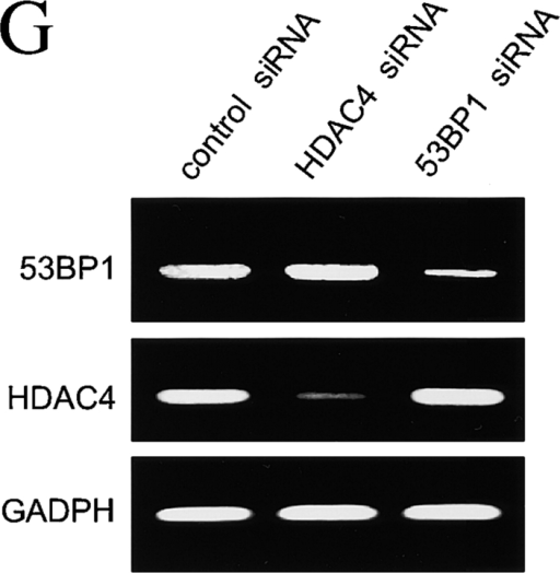 RNAi efficiently silences HDAC4 and 53BP1 protein expression. (A) HeLa cells were transfected with siRNA targeting two different sequences in HDAC4 or control siRNA, harvested 36 h later, and immunoblotted for HDAC4 and α-tubulin (loading control). Whole cell lysates from untransfected cells serve as a positive control. (B) Time course of HDAC4 siRNA–mediated silencing of protein expression. Parallel plates of HeLa cells were treated with HDAC4 siRNA and harvested at the times indicated. All lysates were separated on 7.5% SDS-PAGE and immunoblotted for HDAC4 or α-tubulin, indicating maximal silencing of the targeted HDAC4 protein by 36 h. (C and D) HDAC4 siRNA diminishes foci formation after IR. HeLa cells were treated with oligofectamine only, control siRNA, or HDAC4 siRNA and irradiated 36 h later with 2 Gy. 1 h after IR, the cells were fixed and immunofluorescence for HDAC4 was performed. Representative cells are shown in C. The number of HDAC4 foci found in each cell was counted. At least 300 cells were counted for each treatment group. (D) The average number of HDAC4 foci per cell after IR for each treatment group is displayed in the histograms. (E) HDAC4 and 53BP1 siRNA silence expression of their targeted protein, as well as each other. HeLa cells were transfected with HDAC4 or 53BP1 siRNA and harvested 48 h later. Lysates were separated on SDS-PAGE and immunoblotted for 53BP1, HDAC4, and α-tubulin. (F) siRNA-mediated silencing of 53BP1 and HDAC4 protein expression is achieved by 24 h after treatment. Parallel plates of HeLa cells were transfected with 53BP1 siRNA and harvested at the indicated times after transfection. Cell lysates were separated by 7.5% SDS-PAGE and immunoblotted with anti-53BP1, HDAC4, and α-tubulin antibodies. (G) HDAC4 and 53BP1 siRNA reduce only their target mRNA. RT-PCR was performed on total mRNA extracted from HeLa cells 48 h after treatment with control, HDAC4, or 53BP1 siRNA. RT-PCR was performed in parallel under identical conditions using primer pairs targeting 53BP1, HDAC4, or GADPH (as control), and the final product was separated via electrophoresis in ethidium bromide–labeled agarose and photographed under UV illumination. Each RT-PCR reaction yielded a single band as shown. (H and I) HDAC4 siRNA diminishes 53BP1 foci formation after IR. HeLa cells were transfected with oligofectamine control, HDAC4 siRNA, control siRNA, or 53BP1 siRNA and irradiated 36 h later with 2 Gy. 1 h after IR, the cells were fixed, immunofluorescence for 53BP1 was performed, and the average number of foci per cell was determined and displayed in the histograms in H. Representative cells are shown in I.