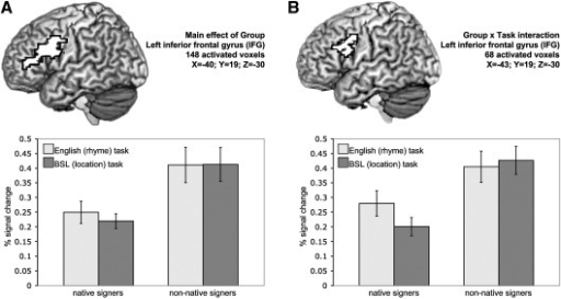 (A) Main effect of Group: non-native signers engaged the left inferior frontal gyrus to a greater extent than native signers. Critically this was the case during both the location and rhyme tasks (see text). (B) A significant Group × Task interaction was also identified in the left posterior IFG/precentral gyrus. Non-native signers recruited this region to a similar degree during both rhyme and location tasks. Native signers engaged this region more during the rhyme task, performed in English which was learned late, than the location task performed in their native language (see text). Activated voxels up to 20mm beneath the cortical surface are displayed. Plots represent the mean % signal change across all voxels in the activated cluster within each group of participants. Error bars represent the standard error of the mean.