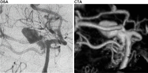 Right superior cerebellar artery aneurysm as visualized by conventional digital subtraction angiography (DSA, left) compared with the same aneurysm visualized by computerized tomographic angiography (CTA, right). Note the high degree of anatomic resolution and the imaging detail of the parent/daughter vessel relationships at the aneurysm neck.