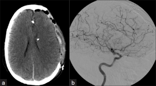 a) CT scan following aneurysm clipping through a frontal transcallosal approach; b) conventional cerebral angiogram through the left internal carotid artery shows complete aneurysm obliteration with preservation of the parent artery