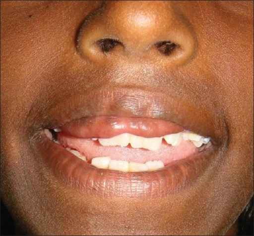 Preop smiling: Double upper lip