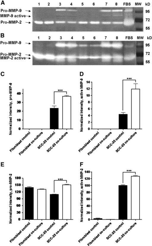 Detection of MMP-2 and MMP-9 gelatinase activity in cell lysate (A) and supernatant (B) of fibroblasts and SCC-25 cells by combined gelatinase zymography. 1–2: fibroblast control, 3–4: SCC-25 control, 5–6: fibroblast co-culture, 7–8: SCC-25 co-culture. Densitometry of MMP-2 and MMP-9 gelatinase zymography (C–F). C and D represent the densitometry of pro-MMP-9 (C) and active MMP-9 (D) bands in cell lysates. E and F show the densitometry of pro-MMP-2 (E) and active MMP-2 (F) form from supernatants.