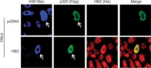 Overexpression of p300 restores H3K18ac in HeLa cells stably expressing HBZ. Immunofluoresence confocal microscopy (magnification ×100/zoom × 1) was used to detect ectopic expression of p300 (denoted by arrows) and to compare levels of H3K18ac in the indicated HeLa cell lines.