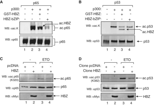 HBZ inhibits p65 and p53 acetylation by p300/CBP. (A) HBZ inhibits p65 acetylation by p300 in vitro. HAT assays were performed using recombinant p65 (80 nM), p300 (4 nM) and GST-HBZ (0.3 µM) or HBZ-bZIP (0.3 µM) as indicated. (B) HBZ inhibits p53 acetylation by p300 in vitro. HAT assays were performed using recombinant p53 (50 nM), p300 (4 nM) and GST-HBZ (0.5 µM) or HBZ-bZIP (0.5 µM) as indicated. In (A) and (B), the lower panel shows the membrane from the top panel reprobed for total p65 and p53, respectively. Reactions were analyzed by western blot using the antibodies indicated. (C) HBZ inhibits p65 acetylation in vivo. Nuclear extracts (40 µg) were prepared from HeLa cell lines expressing HBZ or containing the empty pcDNA vector. Cells used in these experiments were stimulated with 50 µM etoposide (ETO) for 5 h. (D) HBZ inhibits p53 acetylation in vivo. Experiments were performed as described in (C). In (C) and (D) the middle panel shows the membrane from the upper panel reprobed for total p65 and p53, respectively. Extracts were analyzed by western blot using the antibodies indicated.