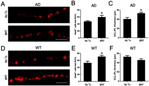 BMT mediates neuroprotection of RGCL neurons in APPswe-PS1ΔE9 and wt mice.A–C: RGCL neurons were identified using anti-NeuN antibody and visualized with Cy3-conjugated secondary antibody in 13-month-old APPswe-PS1ΔE9 and wt mice. Representative photomicrographs of NeuN+ RGCL neurons in control (A, top) and BMT-recipient (A, bottom) APPswe-PS1ΔE9 mice demonstrate neuroprotective effects of BMT through preservation of RGCL neurons (B) and inner retinal (NFL+RGCL+IPL) thickness (C). D–E: Representative photomicrographs of NeuN+ RGCL neurons in 13-month-old control (D, top) and BMT-recipient (D, bottom) wt mice also demonstrate neuroprotective effects of BMT through preservation of RGCL neurons (E). F: No effects on retinal thickness in wt recipients compared with the wt controls. *P<0.05, n = 6–10, student's t test. Scale bar  = 50 μm.