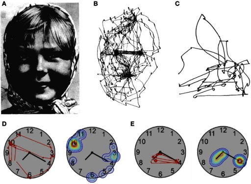 Patterns of visual exploration in simultanagnosia. (A) Portrait used by Yarbus (1967) when studying face exploration. (B) Scan-path of a healthy subject and (C) of a patient with simultanagnosia when exploring the picture shown in (A). (D) Scan-path and fixation-density plot from a patient with simultanagnosia and (E) a healthy subject exploring a clock-face [A and B: adapted from Yarbus (1967); C: adapted from Luria et al. (1963); D and E: adapted from Nyffeler et al. (2005)] with permission from Elsevier.