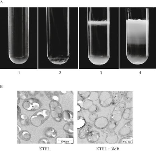 Sucrose density step‐gradient ultracentrifugation of P. putida strains. Cells were grown under two steps PHA production conditions, with or without 3MB (5 mM) as inducer (see Experimental procedures). A. Tube 1, P. putida KT2440 wild type grown with 3MB; tube 2, P. putida KTHL grown without 3MB; tube 3, P. putida KTHL grown with 3MB; tube 4, P. putida KTHL grown with 3MB broken by a fourfold passage through a French press. The white band located at the interfaces of tubes 3 and 4 corresponds to the free PHA granules released to the extracellular medium. B. Transmition electronic microscopy views of mcl‐PHA accumulating P. putida KTHL cells. Samples were taken after 24 h growing under the two phases fermentation system in the presence (right) or absence (left) of 3MB inducer.