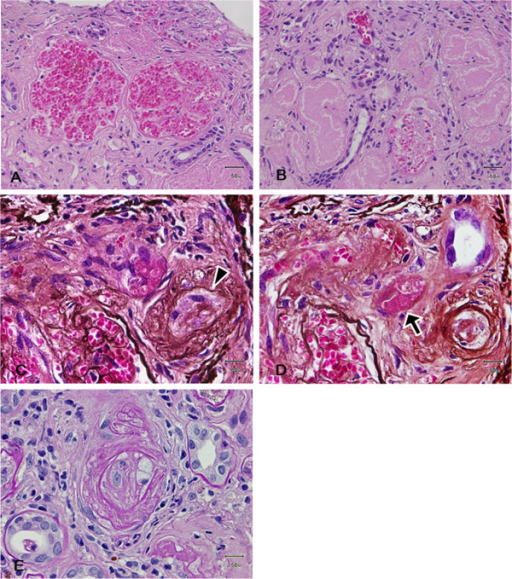 Histopathological findings of renal biopsy. (A) Light photomicrograph showing two glomeruli with widened capillary lumina containing red blood cells (Hematoxylin and eosin stain; original magnification, ×200). (B) Severe tubular necrosis with a loss of cellular detail (Hematoxylin and eosin stain; original magnification, ×400). (C, D) Serial sections of an afferent arteriole with obliterative intimal change (C; arrowhead) and intraluminal thrombus formation (D; arrow) (Periodic acid silver methenamin stain; original magnification, ×400). (E) Smaller interlobular arteries and arterioles showed occlusion or extensive narrowing of their lumen which was interpreted to represent the sequel of TMA (D; Periodic acid-Schiff stain; original magnification, ×400).