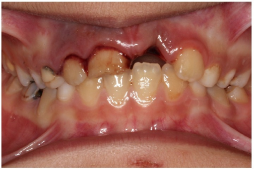 Avulsion of the left upper incisor.