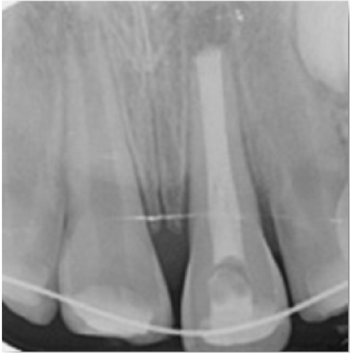 Periapical radiograph after immediate replantation of avulsed tooth.