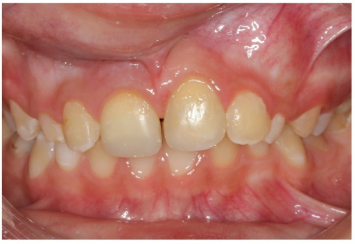 Frontal view, 18 months after trauma, slight infraposition of avulsed tooth.