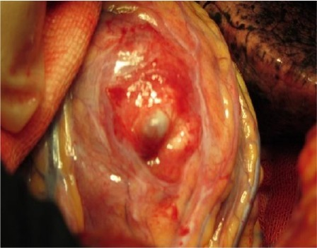 Intra operative view of hydatid cyst to pericardium (black arrow)