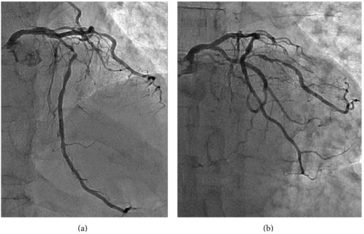 Baseline coronary angiography. (a) Cranial view and (b) caudal view.