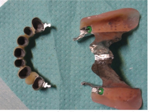Components of maxillary prosthetic reconstruction and connection system