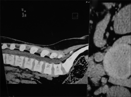 After antiretroviral therapy computed tomography 2