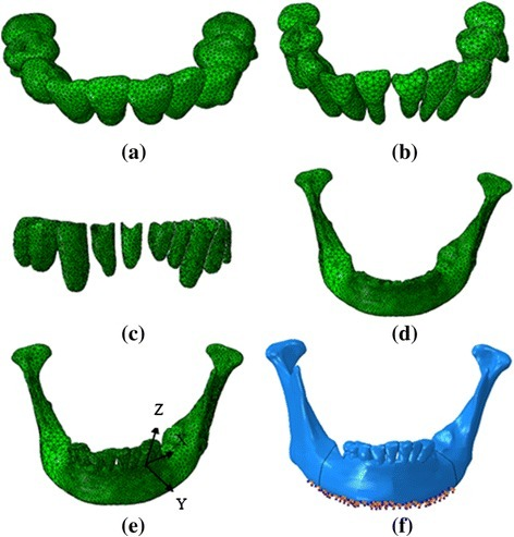 Finite element model of mandibular tissue, Aligner (a), Dentition (b), periodontal ligament (c), mandible (d), the assemble model (e), load and boundary condition (f)
