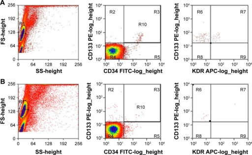 EPCs from peripheral blood.Notes: This figure showed flow cytometry results of AVM patients (A); in controls (B). Left panels, raw images; middle panels, CD133+/CD34+ double-positive cells (upper right quadrant); and right panels, CD133+/CD34+/KDR+ triple-positive cells (upper right quadrant).Abbreviations: EPCs, endothelial progenitor cells; AVM, arteriovenous malformation.