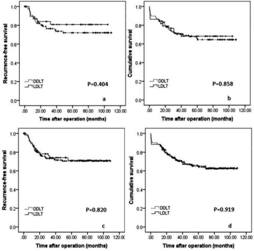Comparison of the RFS (Fig.3a) and OS (Fig.3b) rates of LDLT and DDLT for patients with HCC within Hangzhou criteria. RFS (Fig.3c) and OS (Fig.3d) curves of LDLT versus DDLT for patients with HCC within Chengdu criteria.