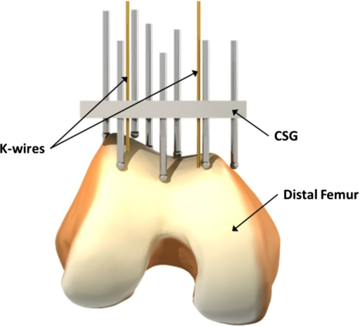 The pin-based version of the CSG applied to the distal femur. The surgical plan is transferred to the operating theater by encapsulating the shape of the bone in the guide using a collection of strategically distributed pins (which collide with the surface of the bone). The CSG has predefined holes for the k-wires that are compatible with standard instrumentation for performing the principal bone cut