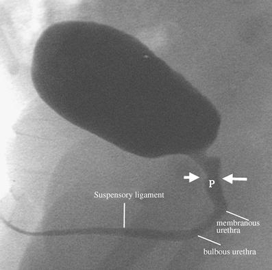 Male urethra anatomy radiology