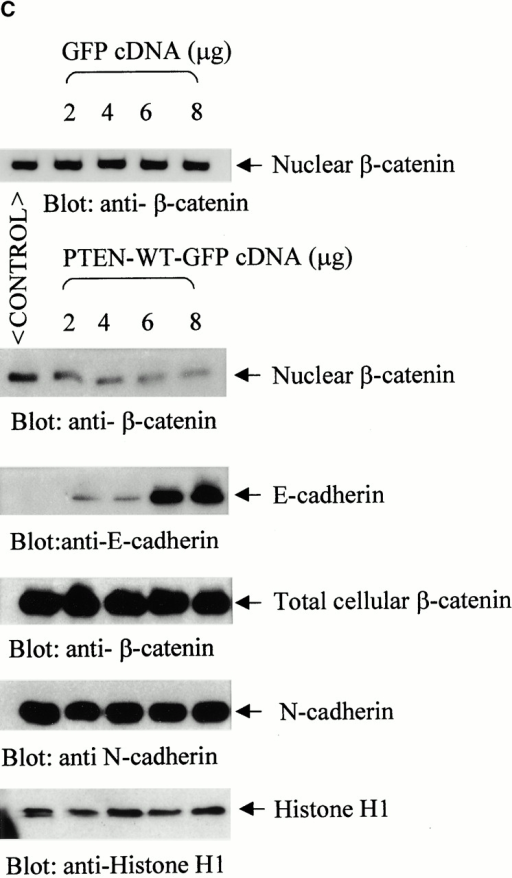 Expression of nuclear β-catenin is reduced by reexpression of PTEN in PTEN  prostate cancer cells. (A) Immunofluorescence analysis of PTEN  prostate cancer cells, PC3, shows that a significant population (70%) of these cells express high levels of β-catenin in their nucleus (arrowheads). Reexpression of PTEN in PTEN  prostate cancer cells LNCaP (B) and PC3 (C) results in a dose-dependent reduction in the expression of nuclear β-catenin. (D) Immunofluorescence analysis of β-catenin confirms that unlike nontransfected PC3 cells (arrowheads), PC3 cells transfected with PTEN (arrows) exhibit anuclear localization β-catenin. A significantly lower proportion of cells in this case express high levels of nuclear β-catenin (16%). Bar, 5 μm.
