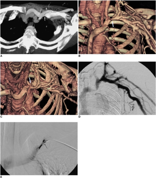 Focal stenosis of the left subclavian vein hidden behind overlapping collateral veins.A. Transverse thin-slab maximum-intensity-projection image obtained after segmentation of the left clavicle and first rib reveals severe stenosis of the left subclavian vein (arrow). Note the presence of a large overlying collateral vein (arrowhead).B. Volume-rendering image in frontal projection shows that the stenotic portion of the left subclavian vein is hidden behind the collateral vein (arrow).C. Volume-rendering image obtained at craniocaudal angulation reveals stenosis (arrow).D. At digital subtraction venography, it is difficult to recognize significant stenosis in the left subclavian vein. The prominence of the collateral veins, however, suggests the presence of hemodynamically significant stenosis.E. Digital subtraction venography performed after the catheter tip placed in the left subclavian vein has revealed severe focal stenosis (arrow) of the left subclavian vein.