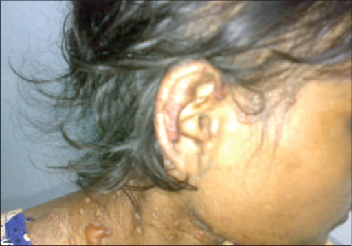 A case of SLE with bullous lesions