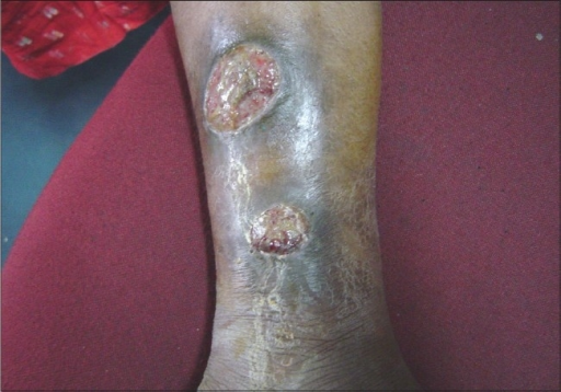 A case of SLE with pyoderma gangrenosum